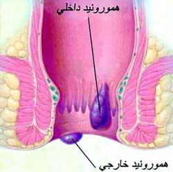 انواع بواسیر (هموروئید)