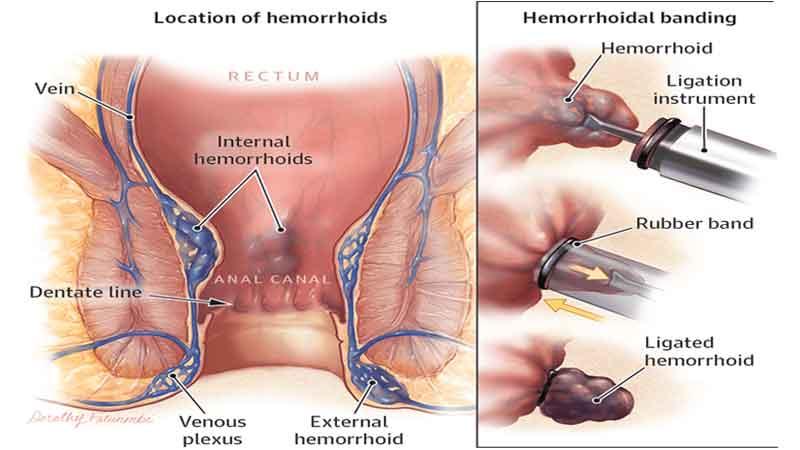 درمان بواسیر یا هموروئید با رابربند (کش لاستیکی)