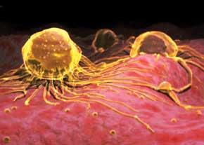 احتمال تبدیل شقاق به سرطان