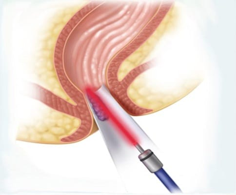 تصویر درمان بواسیر با لیزر