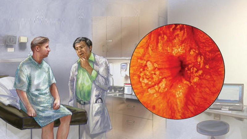 زگیل مقعد چیست و چه روشهایی برای درمان زگیل وجود دارد؟