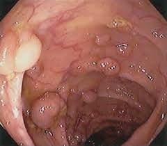 سرطان کولورکتال