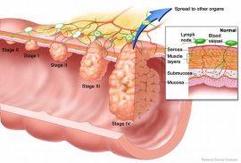 درمان سرطان روده و مقعد