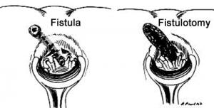 درمان فيستول مقعد