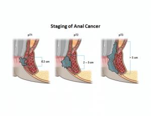 مراحل سرطان مقعد