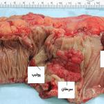 علائم سرطان روده بزرگ و نحوه ارزیابی و درمان این سرطان