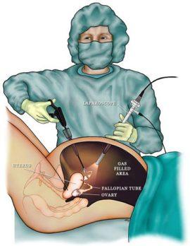 جراحي لاپاراسكوپي