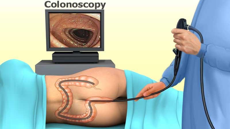کولونوسكوپی چیست و در چه مواردی کاربرد دارد؟