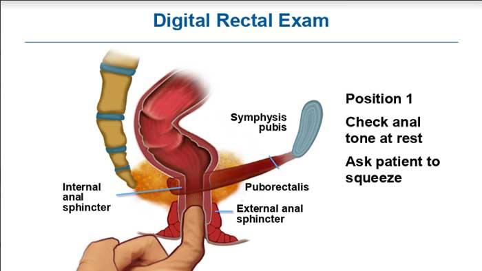 تشخیص رکتوسل