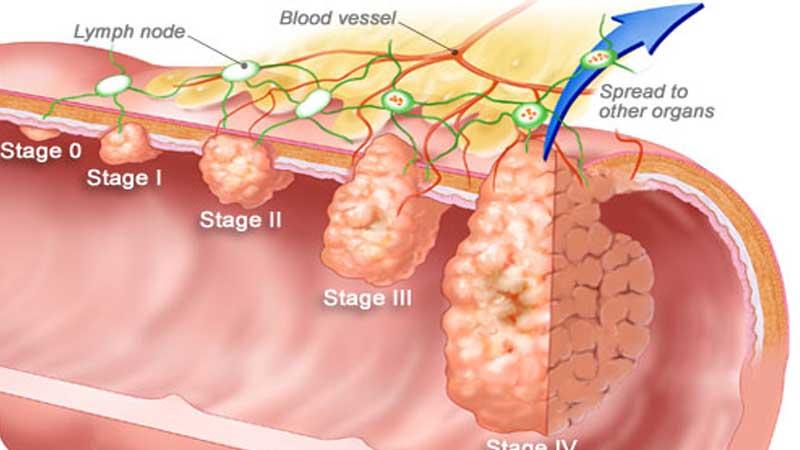 آزمايش سرطان كلوركتال و نحوه تشخیص این بیماری