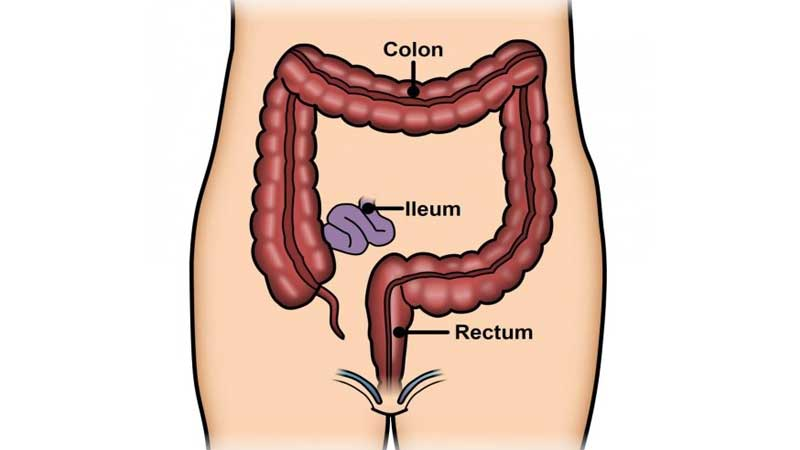 کولیت اولسراتیو و روشهای گوناگون درمان کولیت