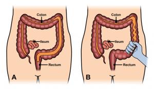 سندروم روده ی تحریک پذیر