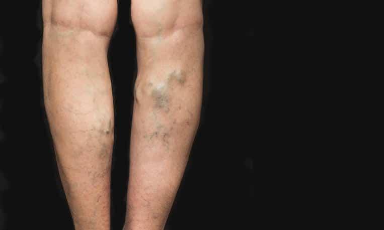 واریس پا چیست ؟ علل،راه های تشخیص و درمان قطعی بیماری واریس