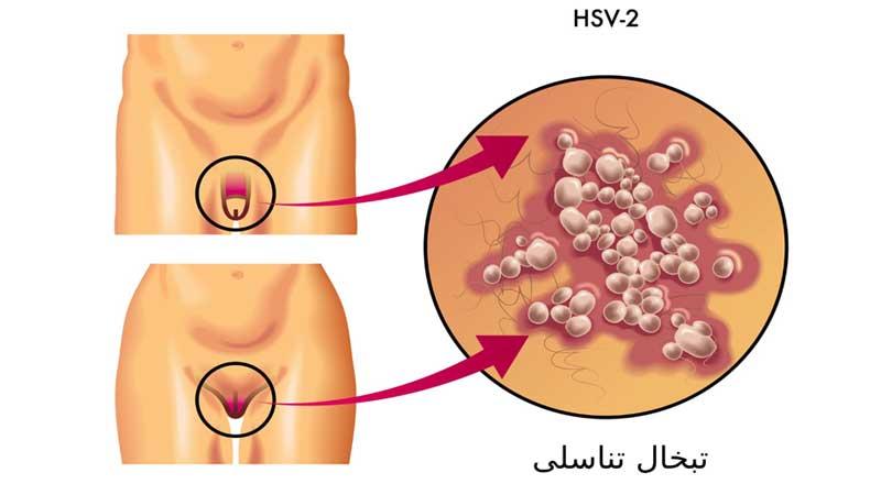 علائم تبخال تناسلی در زنان و مردان و انواع روش های درمان آن
