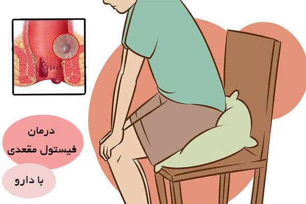 روشهای درمان گیاهی و درمان خانگی فیستول مقعدی
