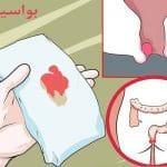 بررسی علائم بواسیر خونی و انواع روشهای درمان این بیماری