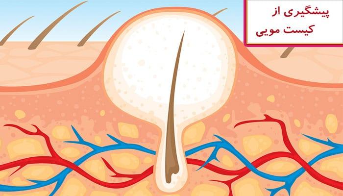 روشهایی برای پیشگیری از کیست مویی یا کیست پیلونیدال