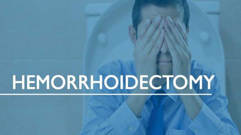 هموروئیدکتومی چیست و چه عوارضی دارد؟