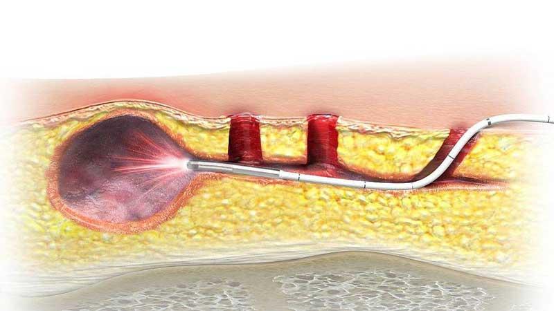 درمان کیست مویی با لیزر یا جراحی – فیلم عمل کیست مویی
