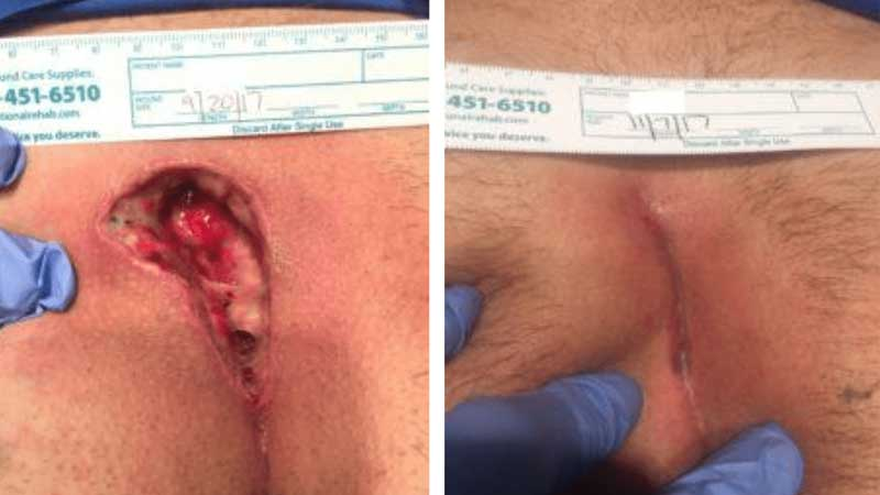 قبل و بعد از جراحی سینوس