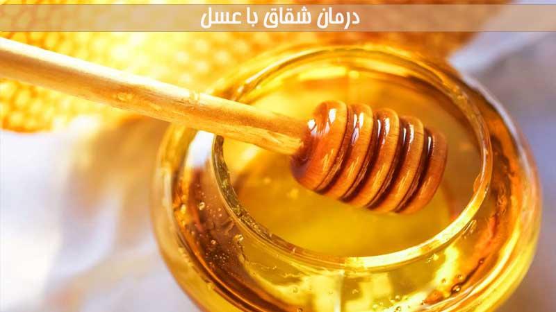 درمان شقاق با عسل یکی از روشهای درمان سنتی این بیماری