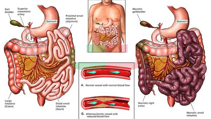 علت ایسکمی روده و عوارض و عوامل خطر این بیماری