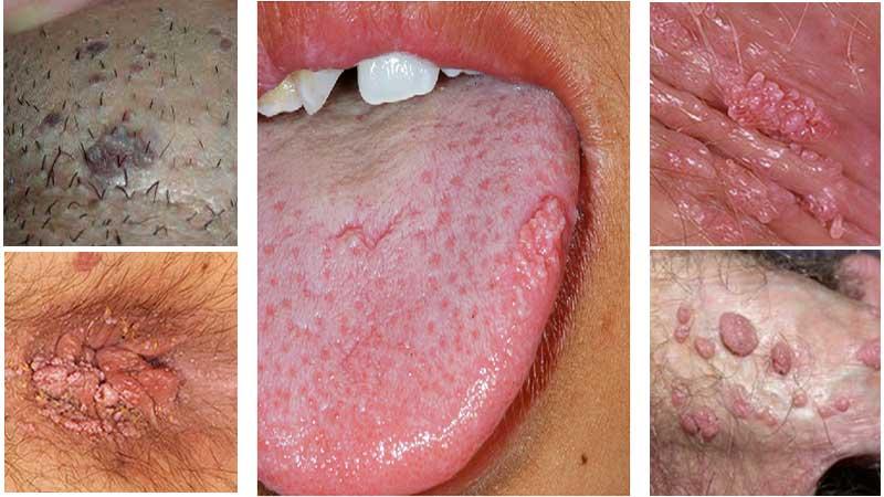عکس انواع زگیل تناسلی و بیماریهای مشابه با آن