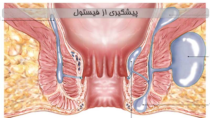 شناسایی عوامل تشدید کننده و پیشگیری از فیستول