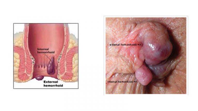 بیماری بواسیر یا هموروئید