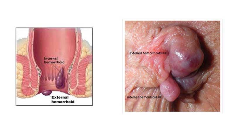 درمان زگیل تناسلی با لیزر، کرایوتراپی و الکتروکوتر