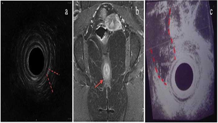 تصویر فیستول - رادیولوژی