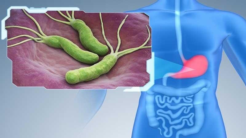 علائم ميكروب معده چيست و چگونه درمان ميشود؟