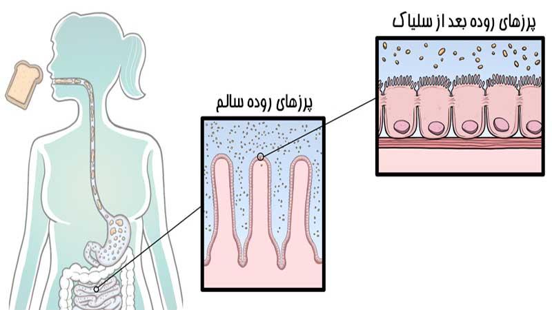 علائم بیماری سلیاک چیست و چگونه تشخیص داده میشود؟