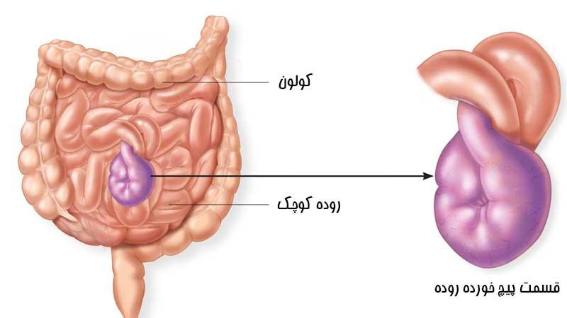 علل ایجاد پیچ خوردگی روده یا ولولوس و عوارض خطرناک آن