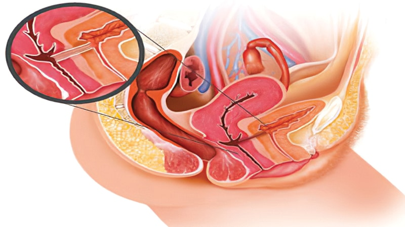 بیماری فیستول در زنان – علائم، دلایل و درمان فیستول واژن