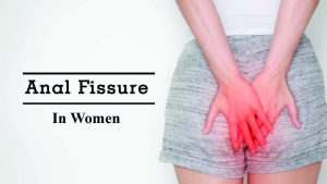 بیماری شقاق در زنان