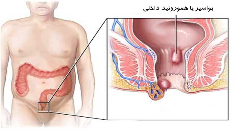 بواسیر یا هموروئید داخلی، علائم، دلایل و راههای درمان