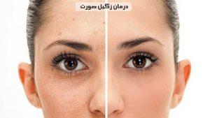 درمان زگیل صورت