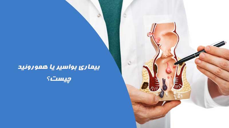 بواسیر چیست؟ علت و علائم هموروئید و زمان مراجعه به پزشک